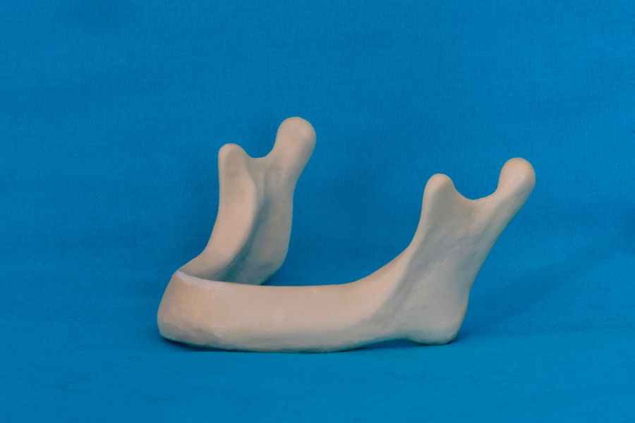 modelli dentali bimodels tailor-made dental models