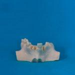 modelli dentali bimodels tailor-made dental models