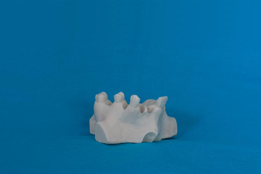 modelli dentali bimodels tailor-made